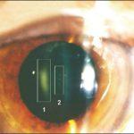 lente plomado proteccion